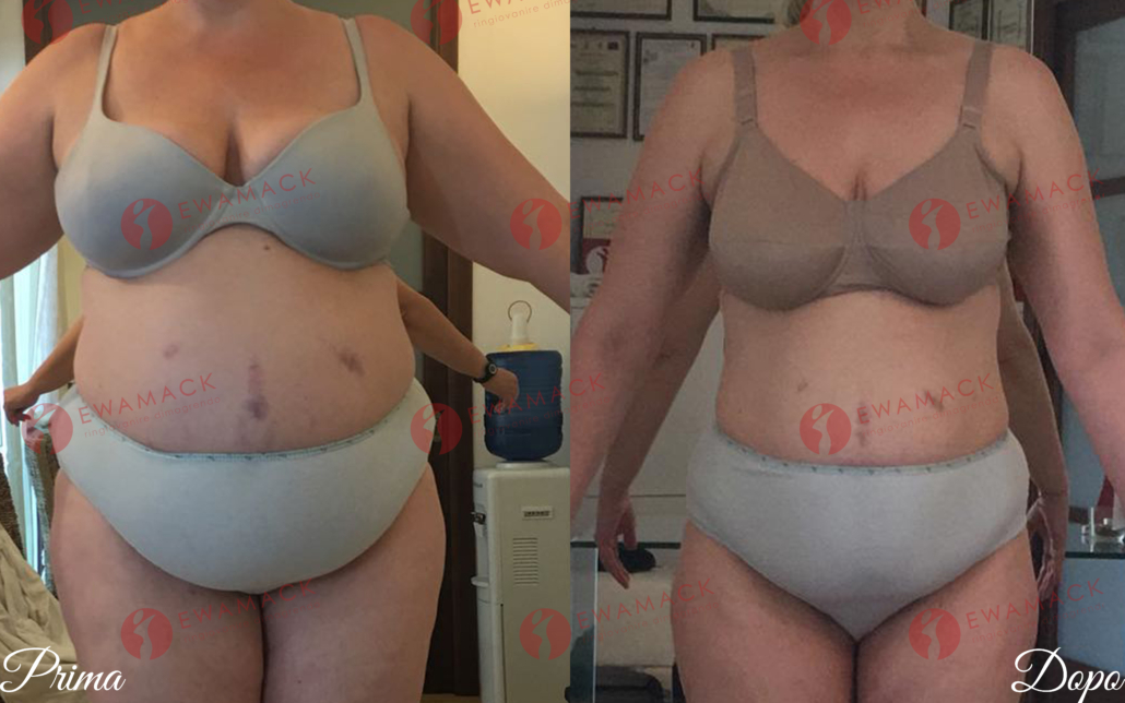 foto prima e dopo dimagrimento donna metodo longevity ewamack