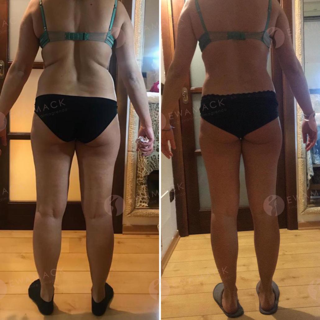 foto prima e dopo dimagrimento donna metodo longevity ewamack lamezia terme