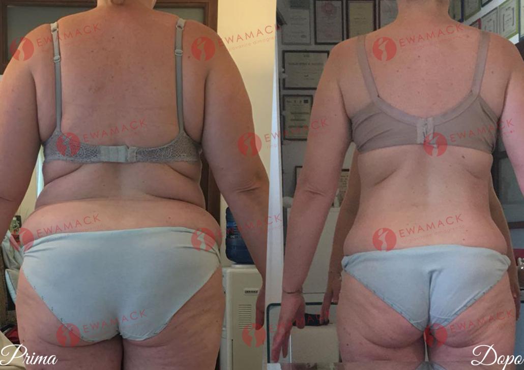 foto prima e dopo dimagrimento donna metodo longevity ewamack catanzaro