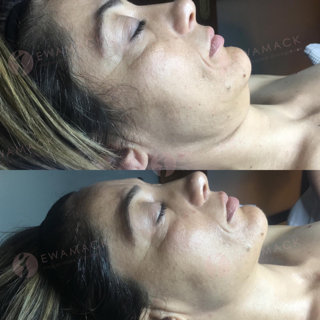 ringiovanire viso metodo longevity ewamack lamezia
