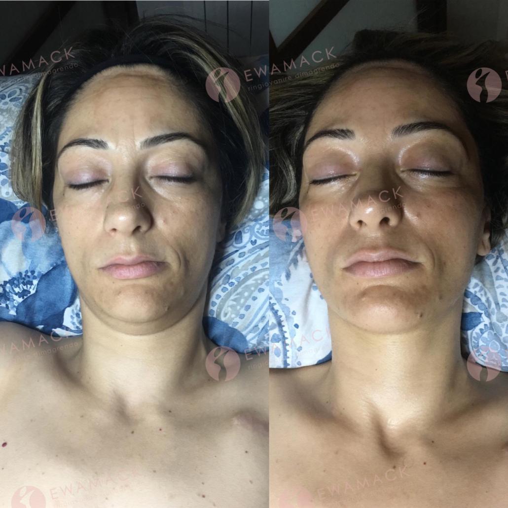 ringiovanire viso metodo longevity ewamack catanzaro